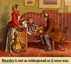 Measles is not as widespread as it once was.