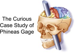 Phineas Gage case study illustration