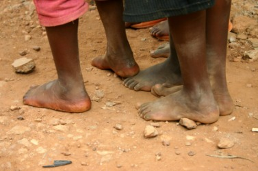 These poor children lack shoes.