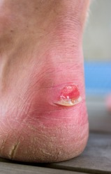 This person has a bad blister on their heel.