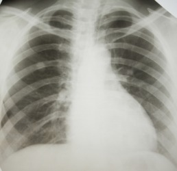 An x-ray of a person with lung cancer.