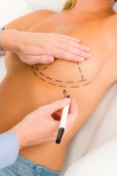 An example of augment is to have your breast enlarged.
