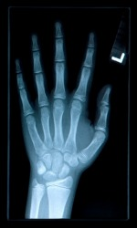 The Xray of a hand shows the phalanges of the fingers.