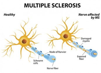 Multiple sclerosis damages the myelin that protects nerves and then forms scar tissue which causes various symptoms to occur.