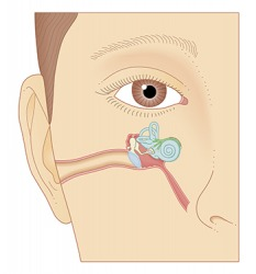 Meniere's Disease can cause sensorineural hearing loss because it affects the inner ear.