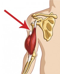An illustration of a ruptured sinew (tendon) of the bicep.