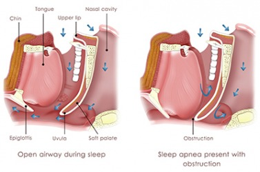 Diagram of obstructive sleep apnea.