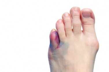 A foot with a large bruise.