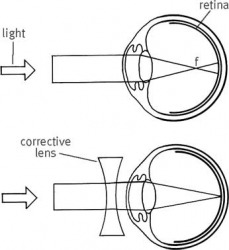 myopia top: When the focus (f) of light falls in front of the retina, vision is blurred.