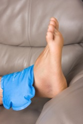 A compress placed on an injured ankle.