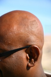 A bald man.