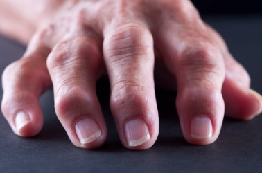 These knuckles show the signs of arthritis.