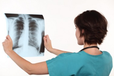 A doctor views an X-ray of a patient's chest.