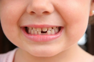 The gap where the missing tooth was is a lacuna.