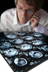 A man scans MRI brain scans.
