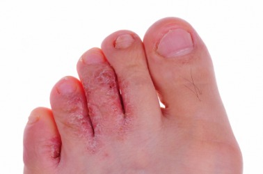 Athlete's foot dictionary definition | athlete's foot defined