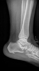 An x-ray showing the anklebone or talus.